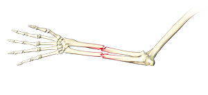 Adult Forearm Fractures