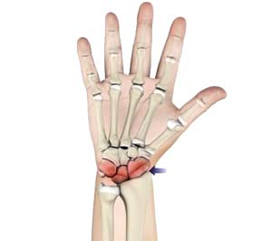 Arthritis of the Hand and Wrist