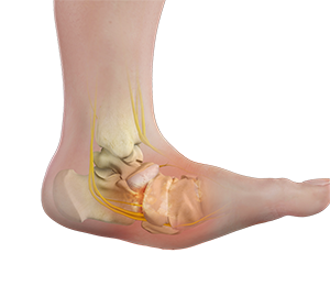Charcot Reconstruction