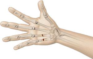 Hand Fracture Surgery