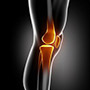 Non-Surgical Knee Treatments
