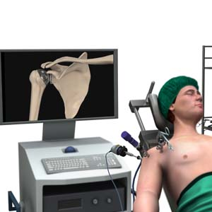 Minimally Invasive Shoulder Joint Replacement
