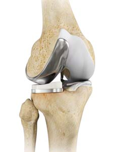 Unicompartmental/Partial Knee Replacement