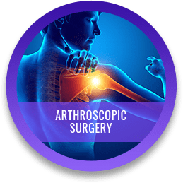 Arthroscopy Surgery